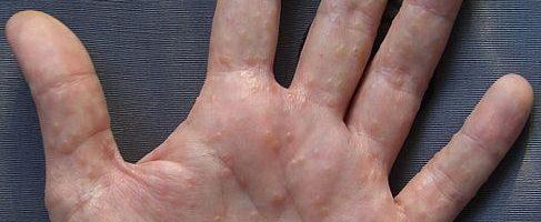Disidrosi a mani e piedi: foto, sintomi e cura