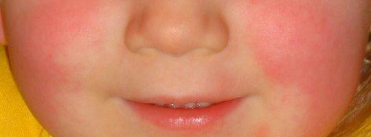 Scarlattina: sintomi , durata e cura